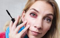 Huidirritatie en allergieklachten kun je altijd melden